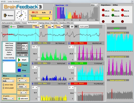 Neurofeedback_monitor