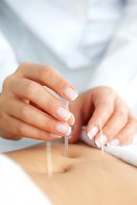 Břišní akupunktura
